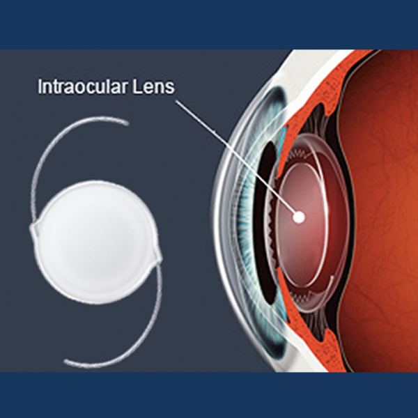 Intra-Ocular lens implantation